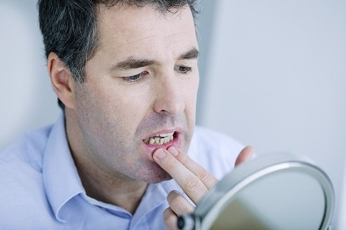 man checks his gums